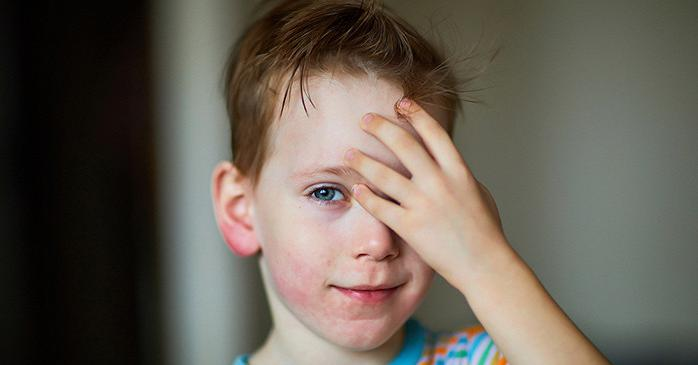 Как лечить крапивницу у детей в домашних условиях