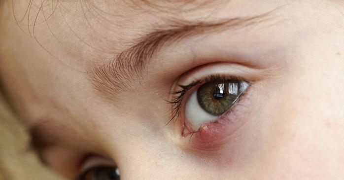 Чем лечить писяк у ребенка